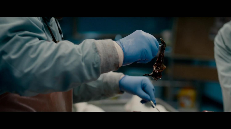 国外新鲜女性尸体解剖